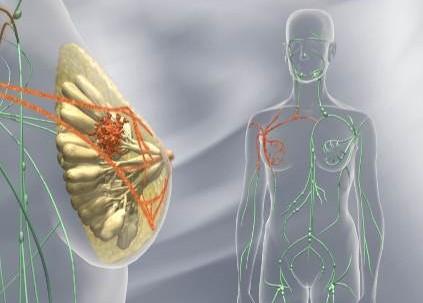 Terapia Combinada en aumento mamario Valencia