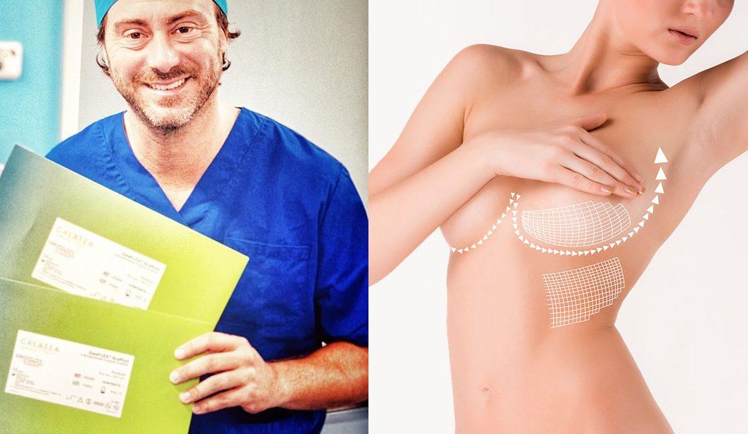 Levantamiento de senos con Malla Reabsorbible. Pechos firmes de aspecto más natural