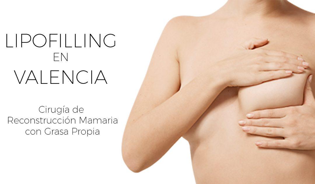 Lipofilling para Reconstrucción Mamaria en Valencia