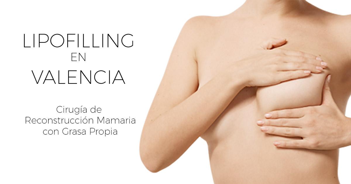 Reconstrucción mamaria con grasa corporal