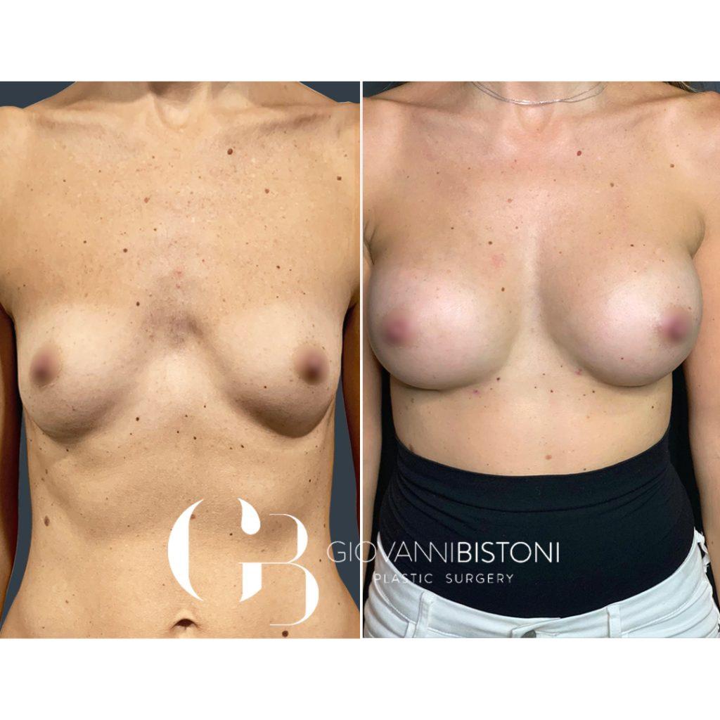 Aumento híbrido mamario