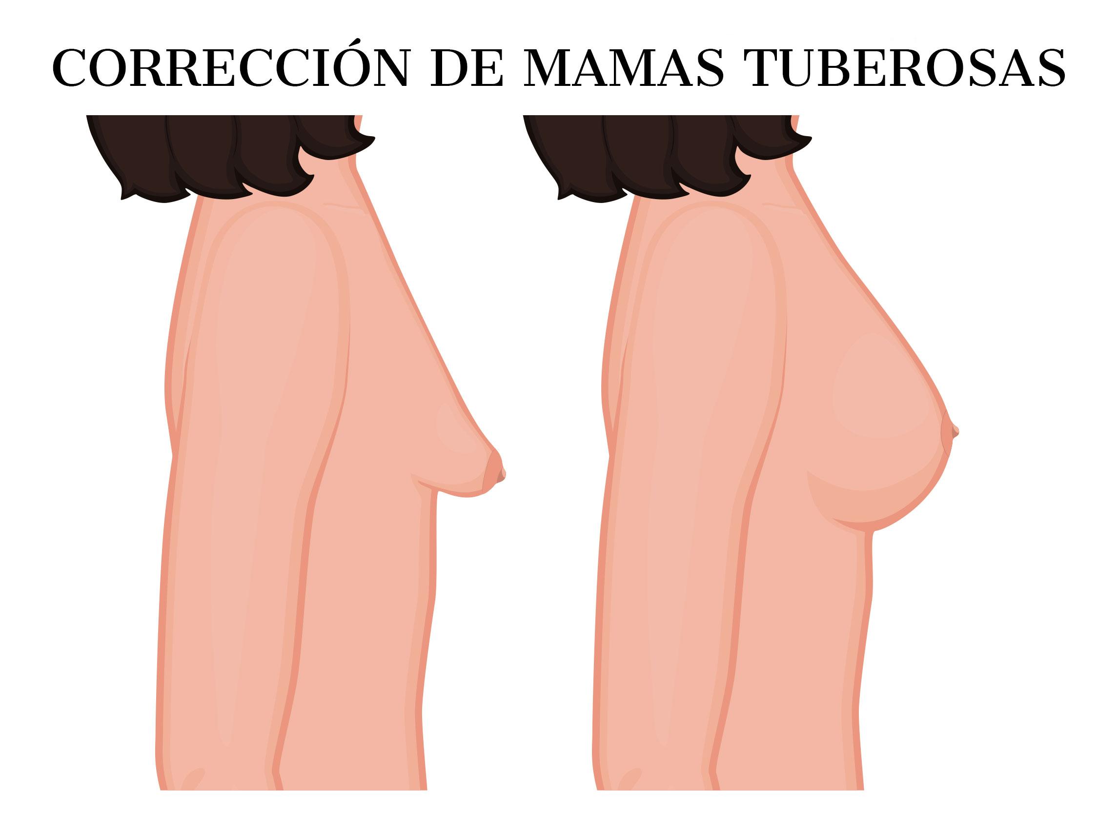 Cirugía de corrección de mamas tuberosas