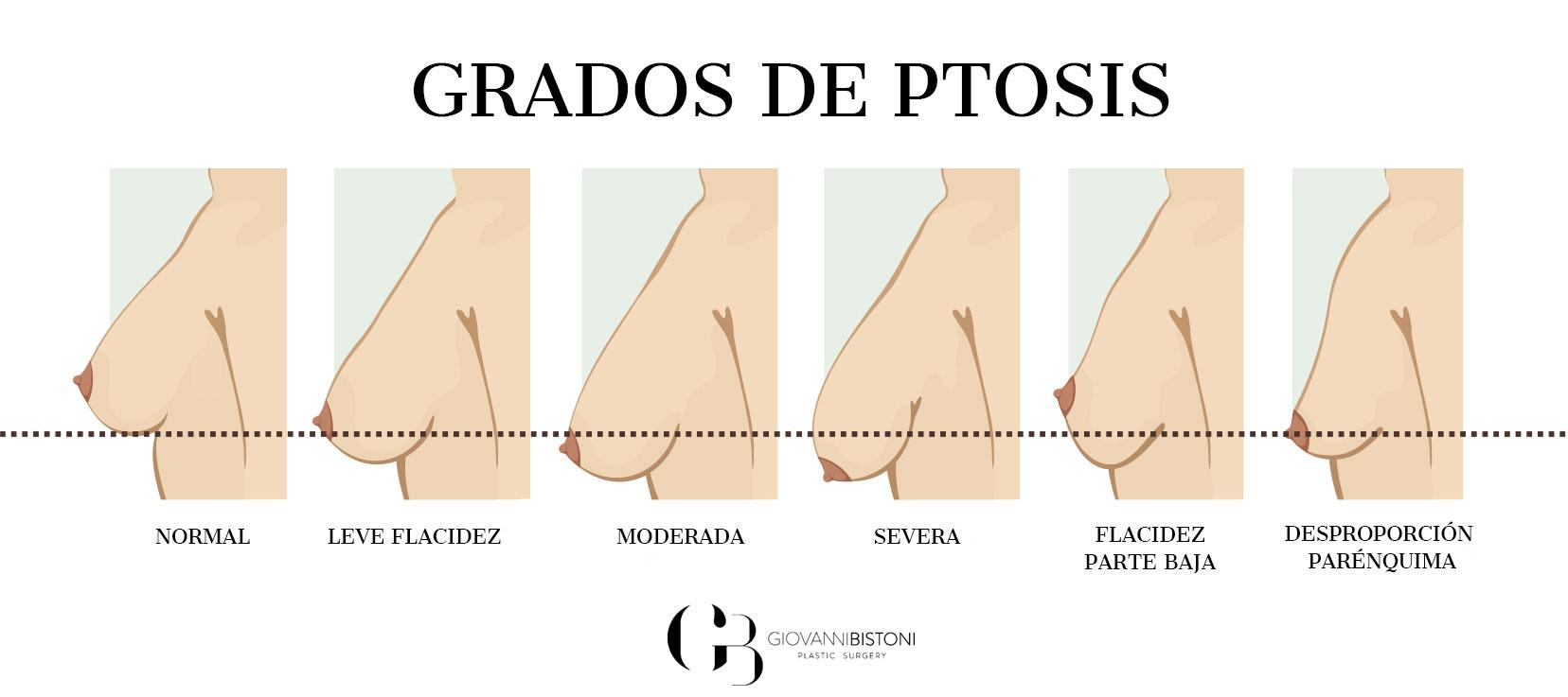 grados de ptosis mamaria mastopexia elevación de senos en Valencia
