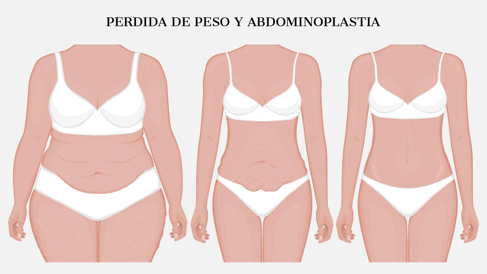 eliminar grasa abdominal tras perdida de peso con abdominoplastia