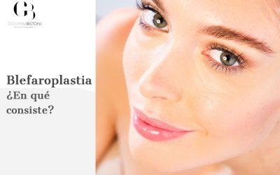 Blefaroplastia ¿en qué consiste?