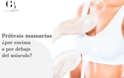 Prótesis mamarias ¿por encima o por debajo del músculo?